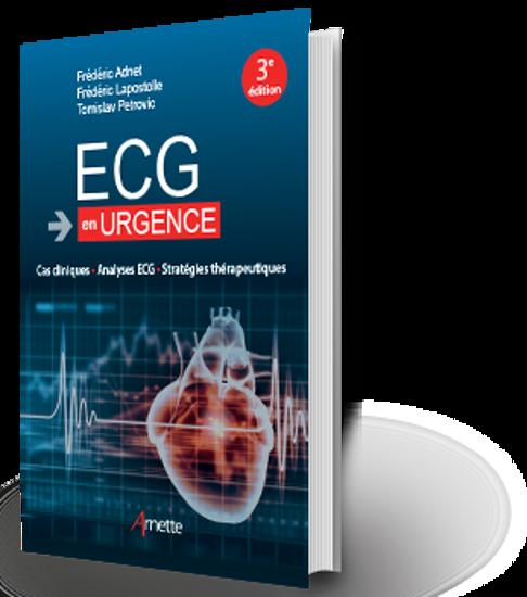 Image sur ECG en urgence Cas clinique - Analyse ECG - Stratégie thérapeutique