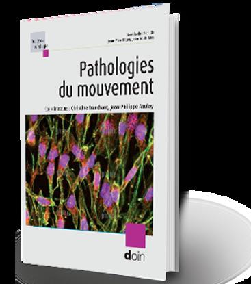 Image de Pathologies du mouvement